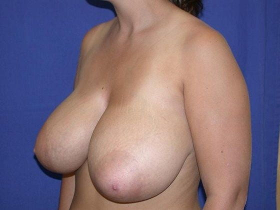 Breast reduction surgery after mastectomy