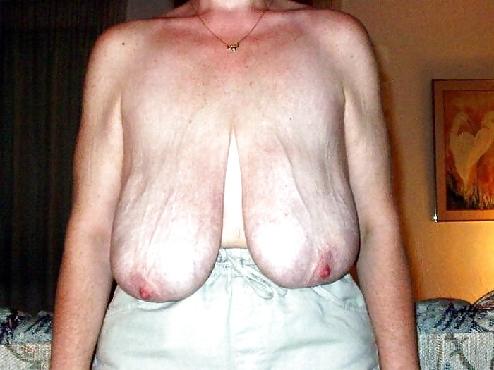 ugliest-tits-ever-pics-young-pussy-virgin-photo