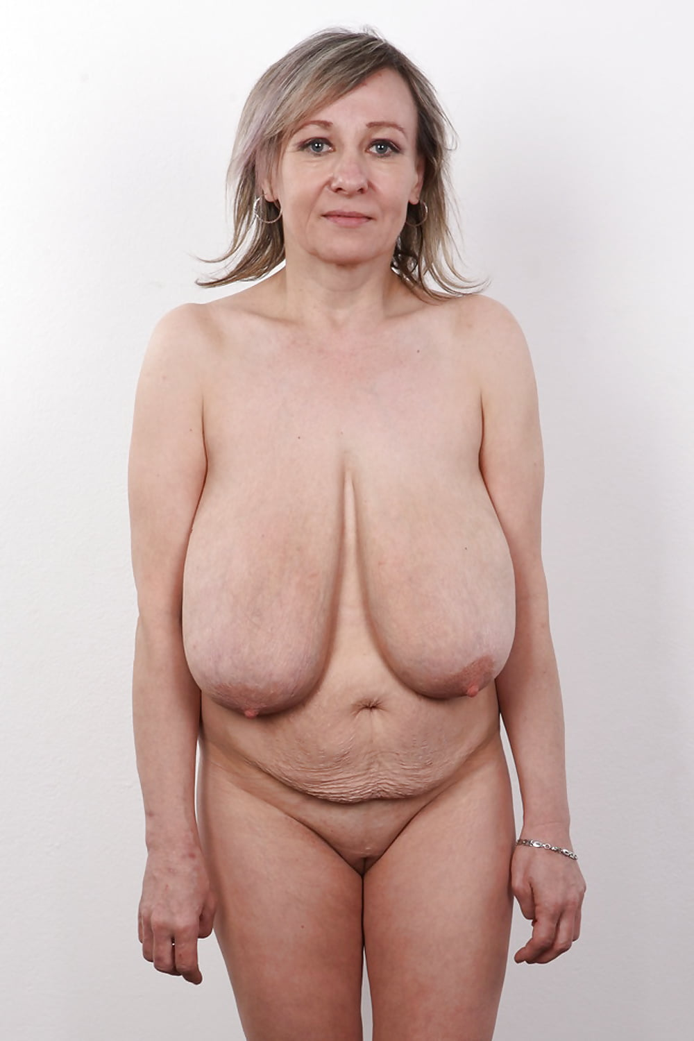 Can saggy breasts be lifted naturally