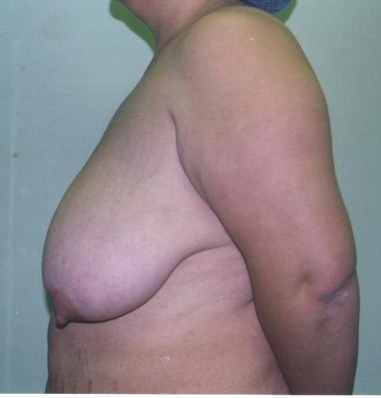 Breast reduction before and after surgery
