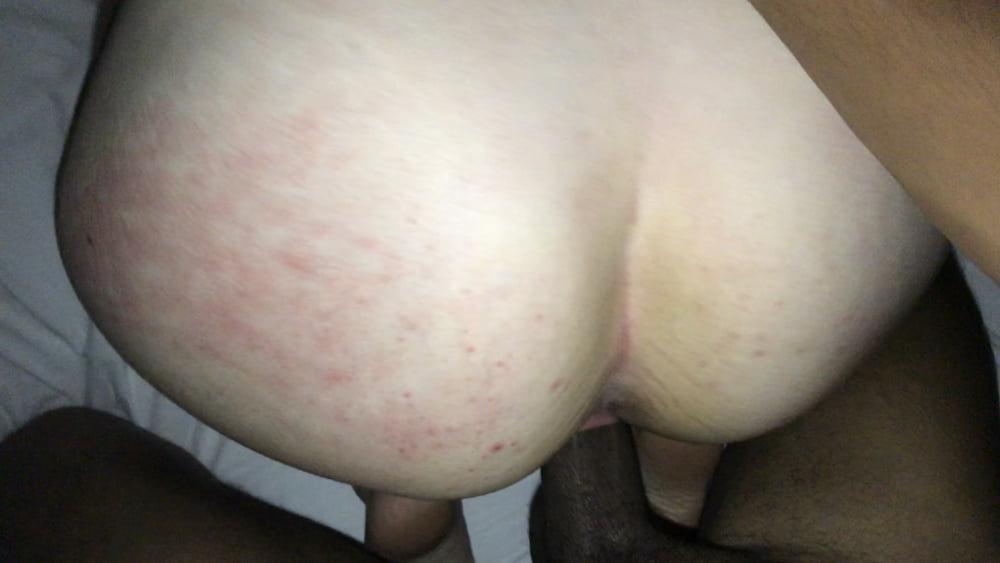 Pain during sex reddit-2119