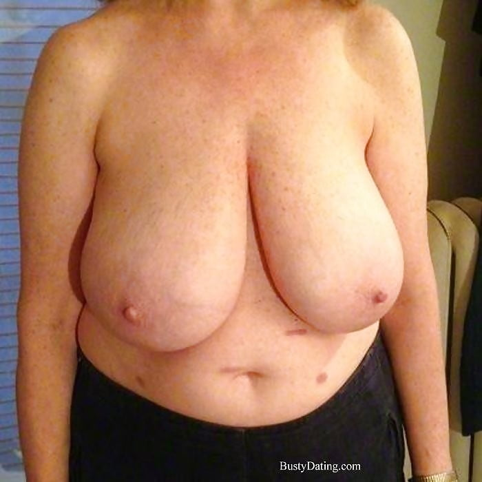 Breast lift areola reduction cost-5941