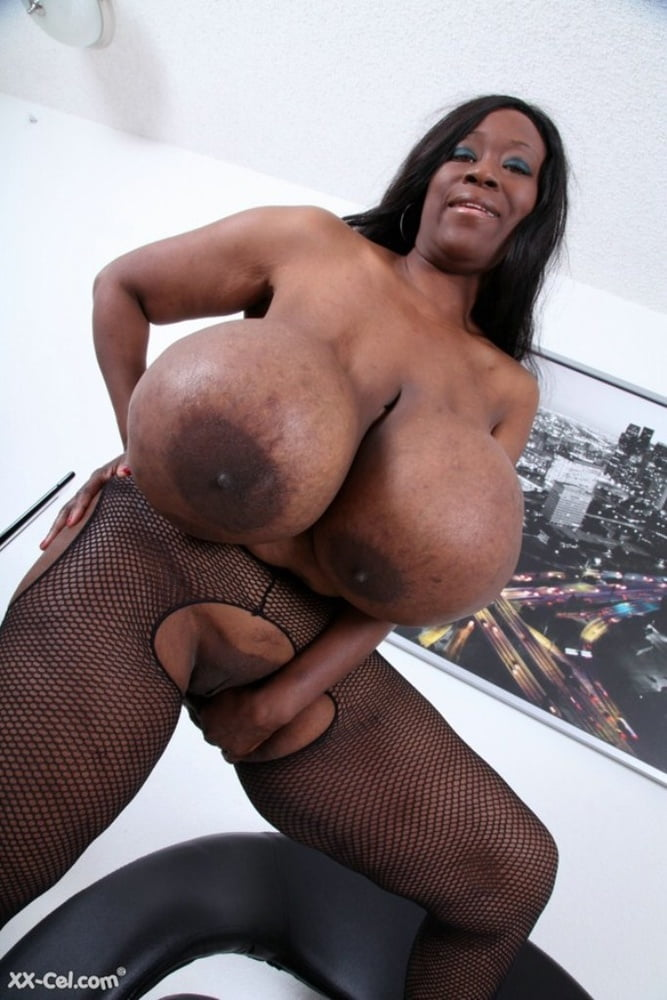 Huge Silicone Tits - 300 Pics  Xhamster-1604