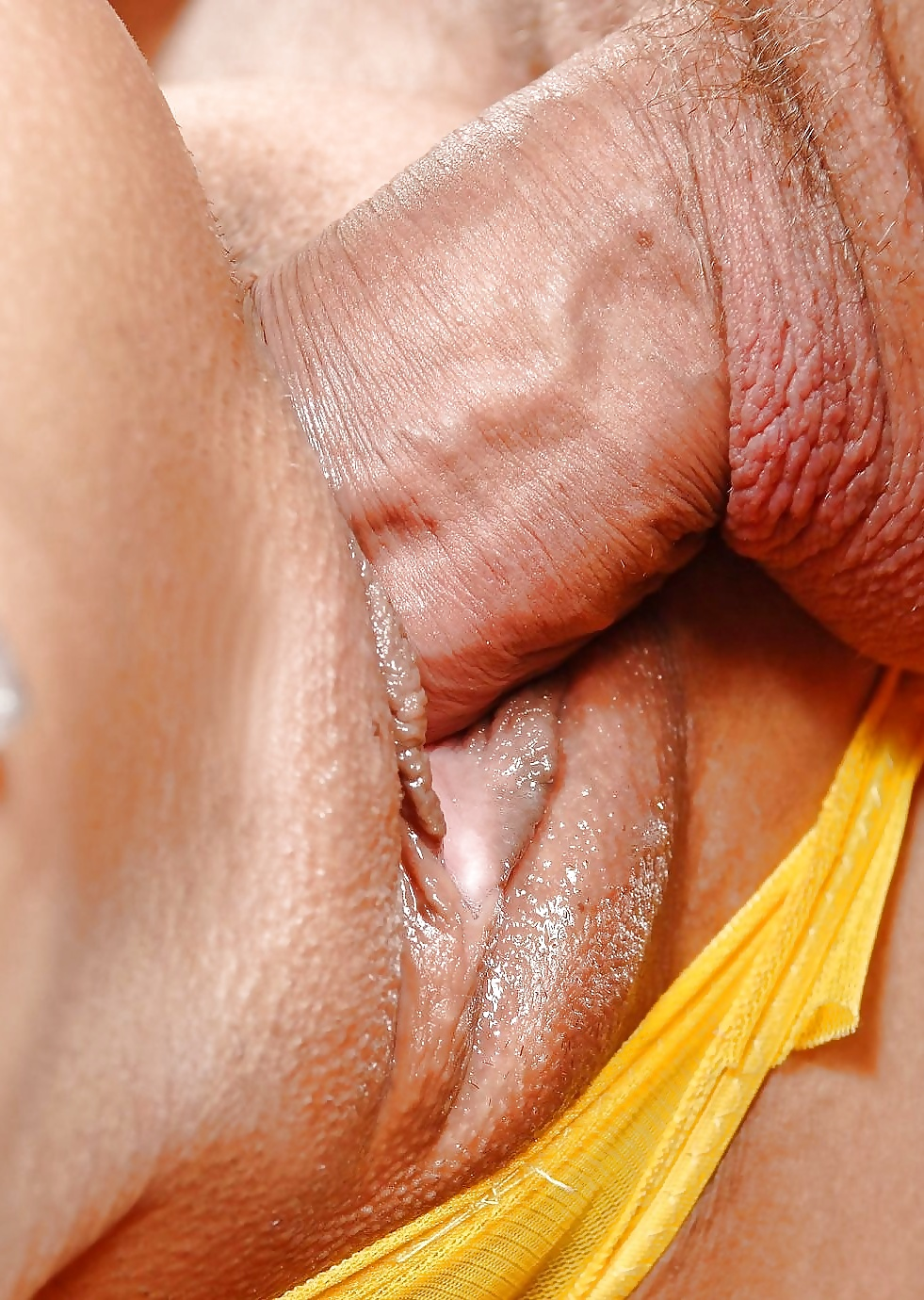 No period but bleeding after intercourse-7265