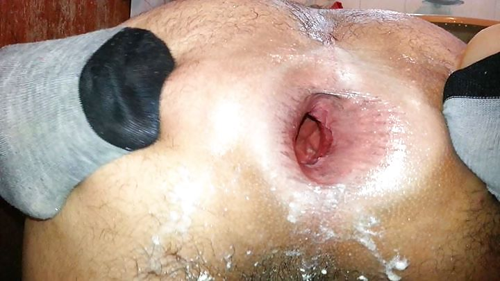 Huge anal pics