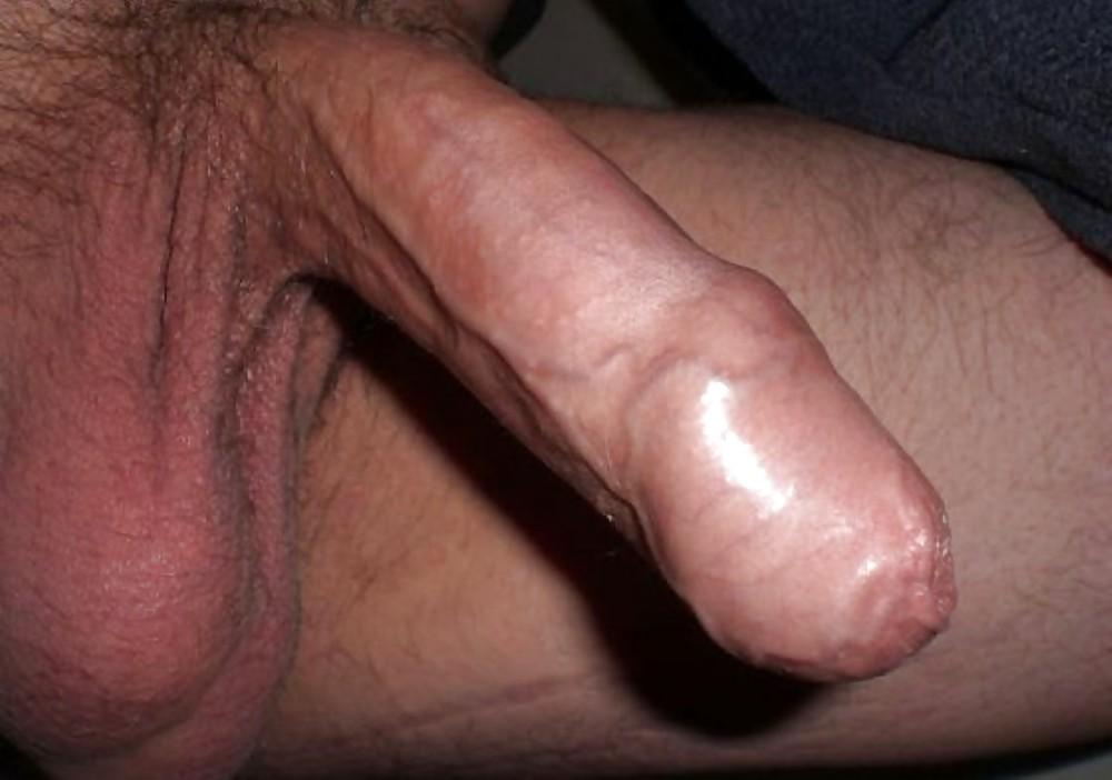 Penis Splitting