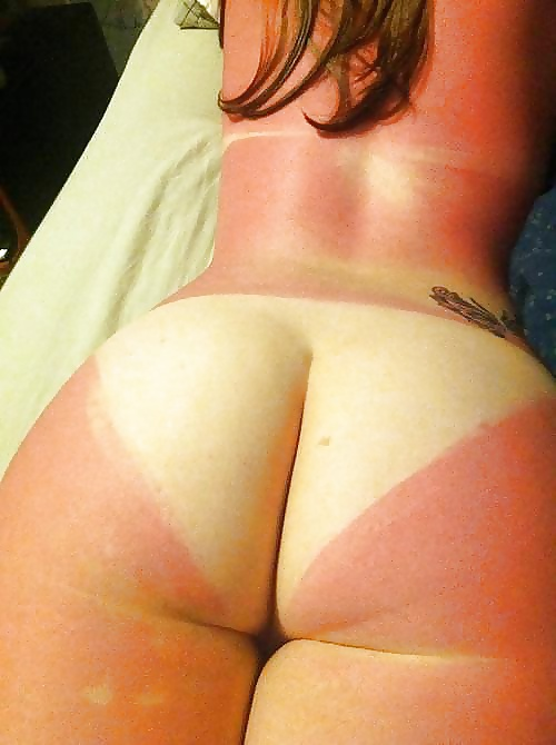 Mortified Mum Accidentally Sends Picture Of Burnt Bum To Carpet Fitters