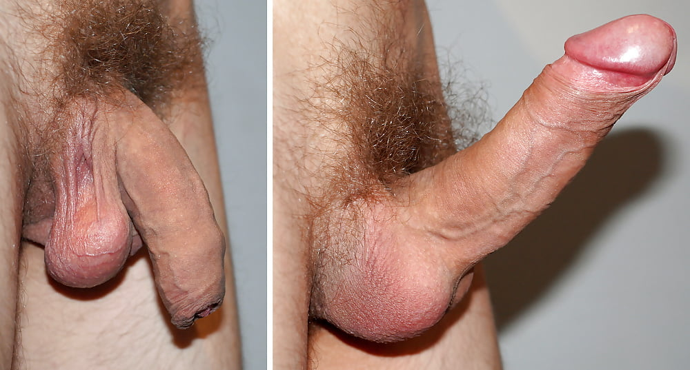 Abnormal Penis Photos