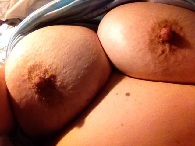 Lactating breast pictures
