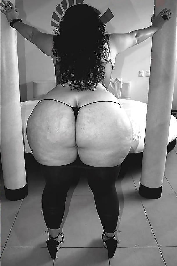 Model With Massive Fake Booty Warns Against Illegal Butt Injections