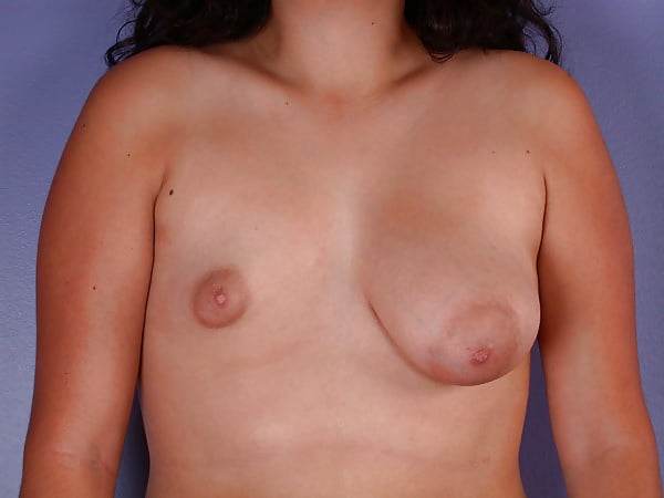 Lopsided tits pics — 8