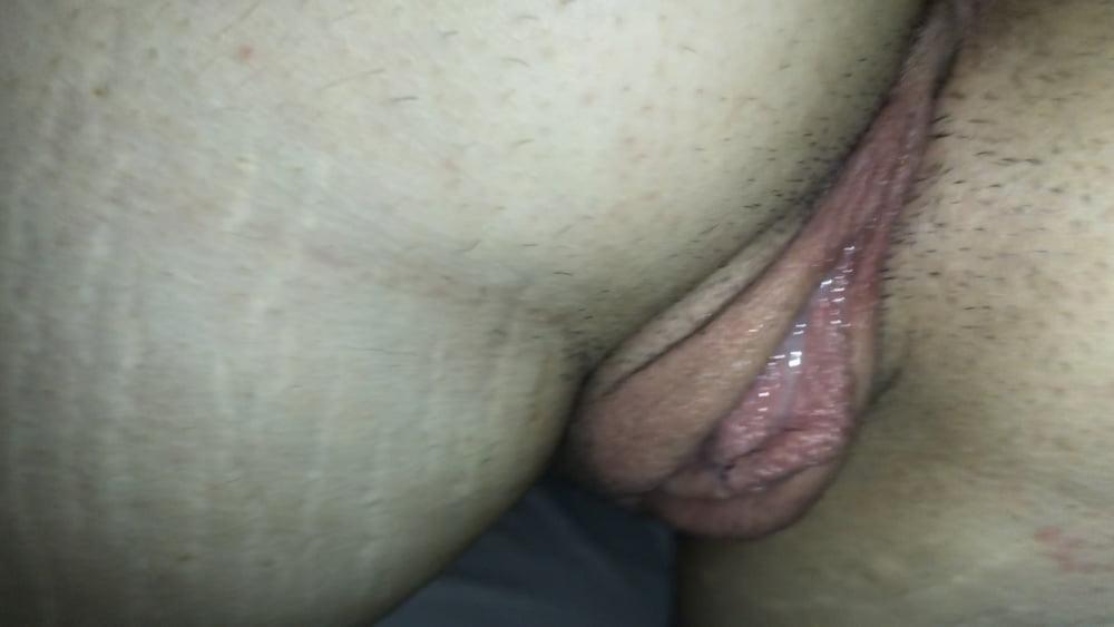 Pain during sex reddit-2600