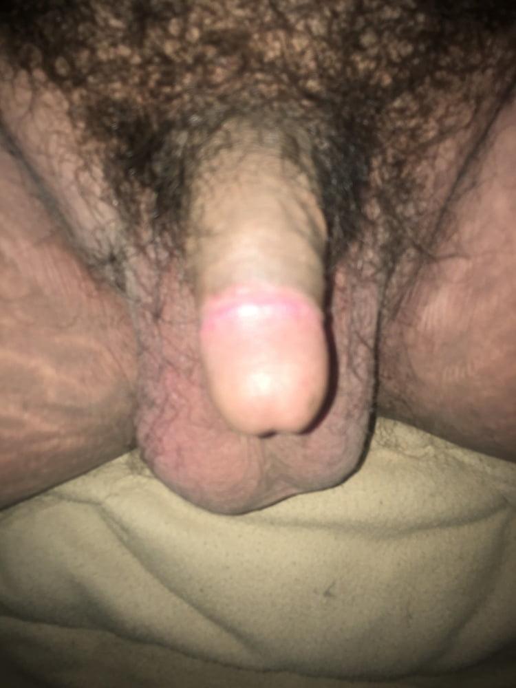 Normaler Penis