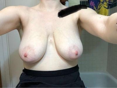 Saggy breast milf