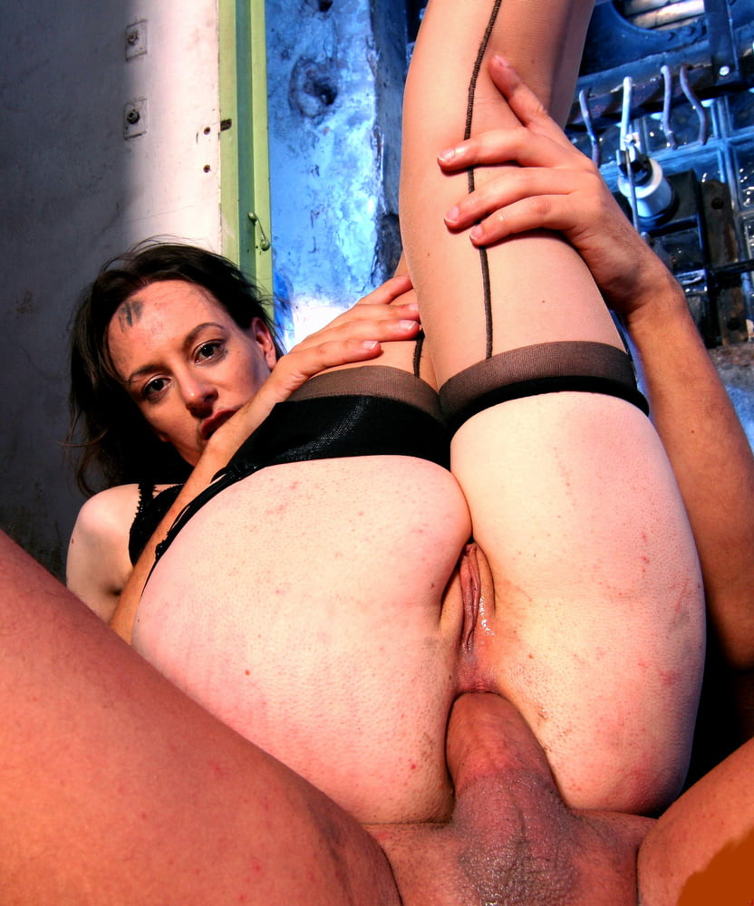 Exposed anal