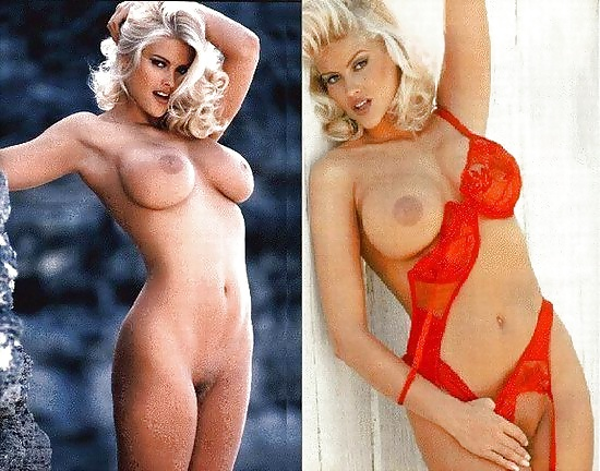 Naked anna nicole smith before breast augmentation — pic 4