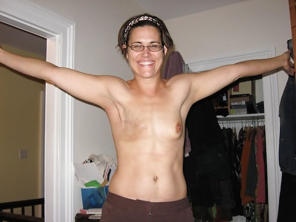 mastectomy-sex-nude-zulu-lady