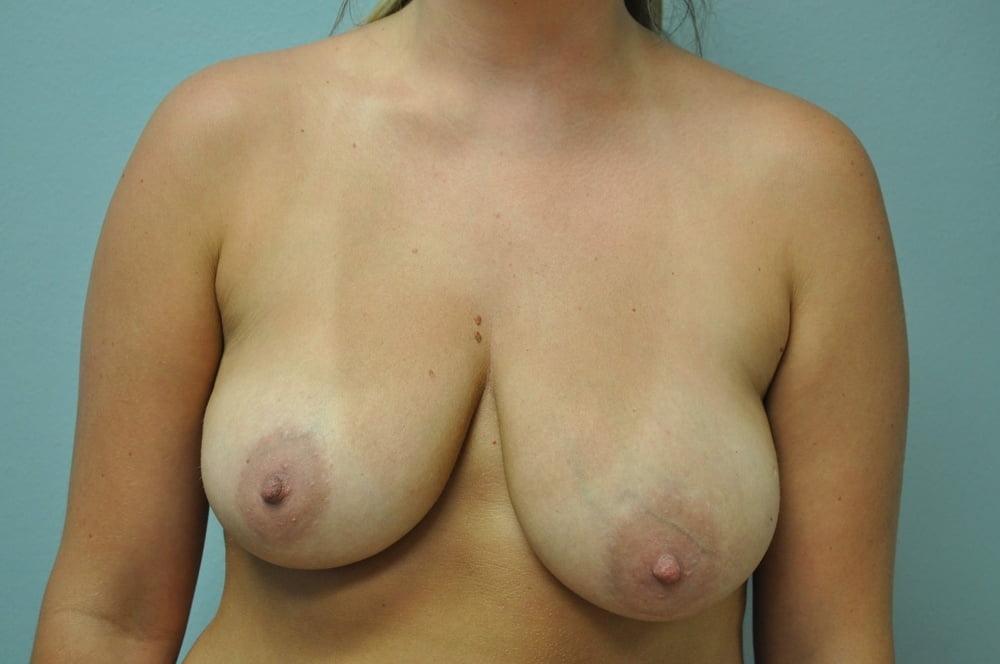 Raygol Nude