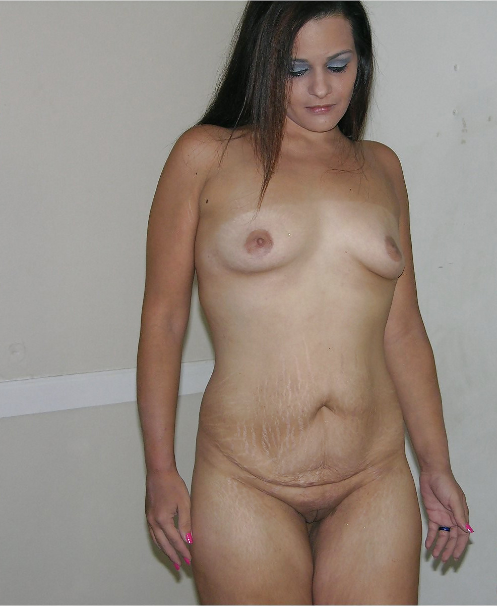 Nude Women With Stretch Marks