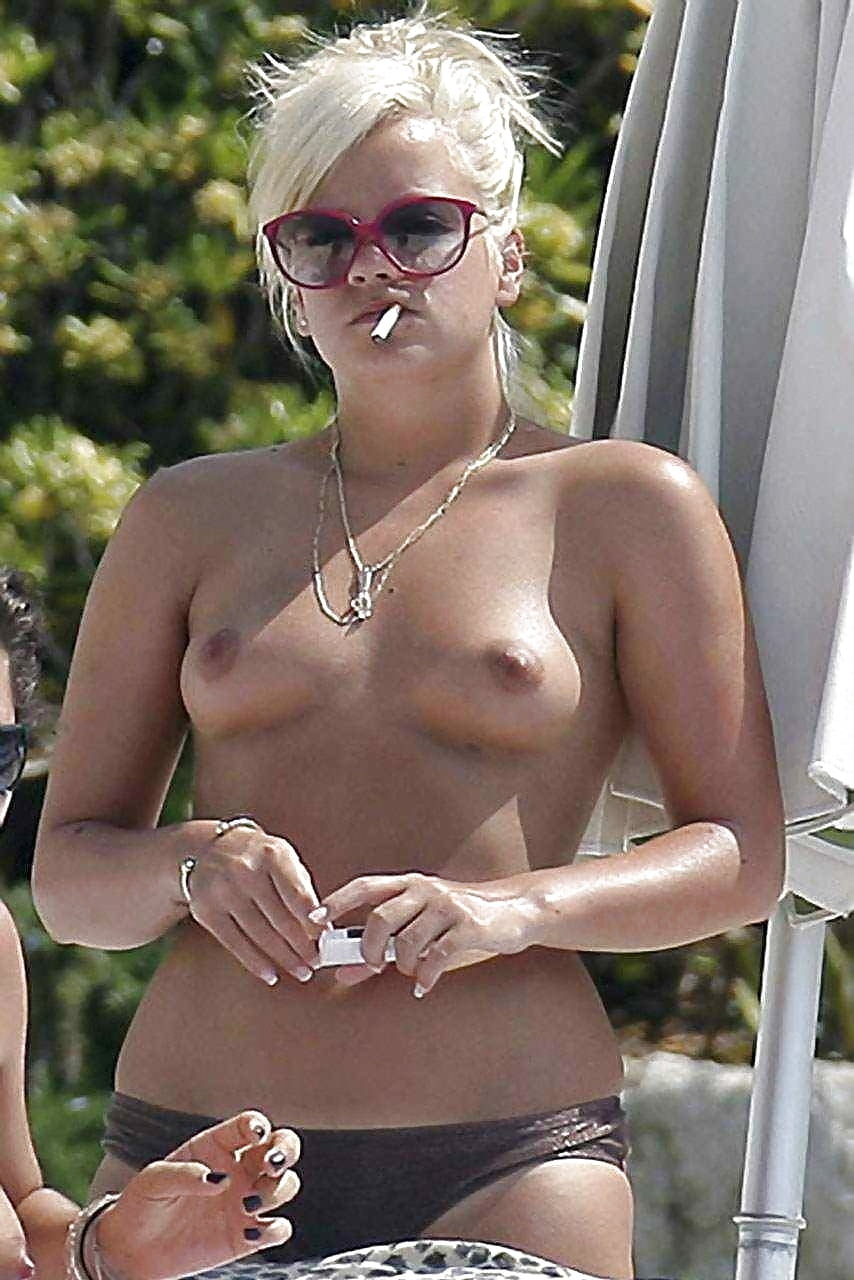 Lily allen exposes assets in eye