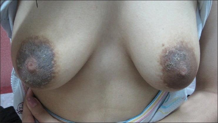 Natural tits beeg-1353