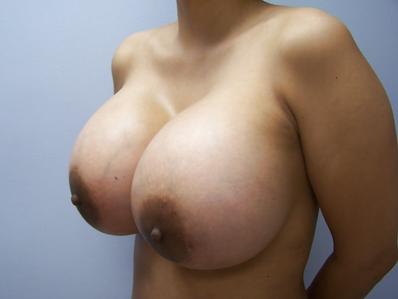 With big breast implants sex photos